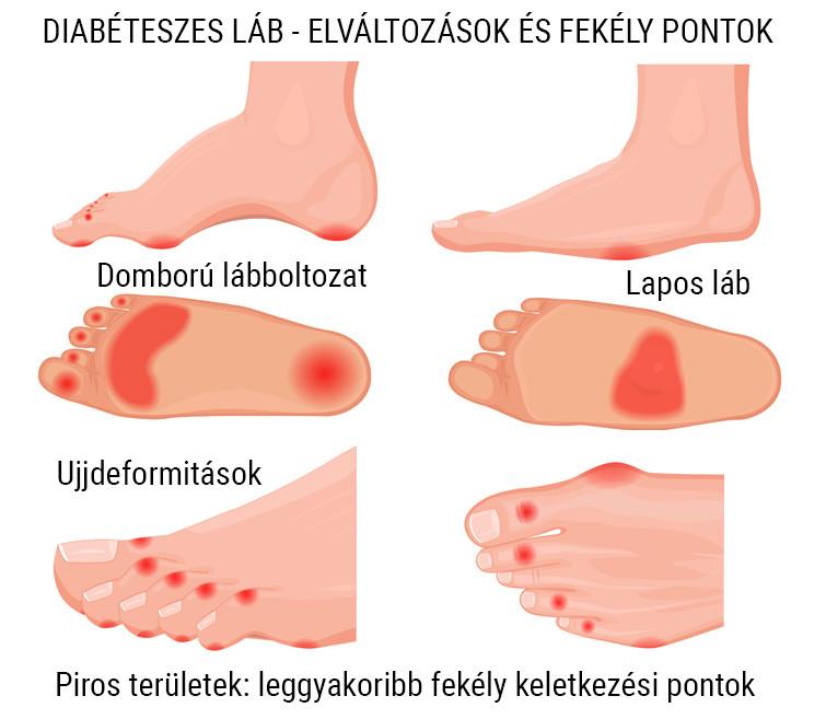 bokagyulladás lapos lábak miatt
