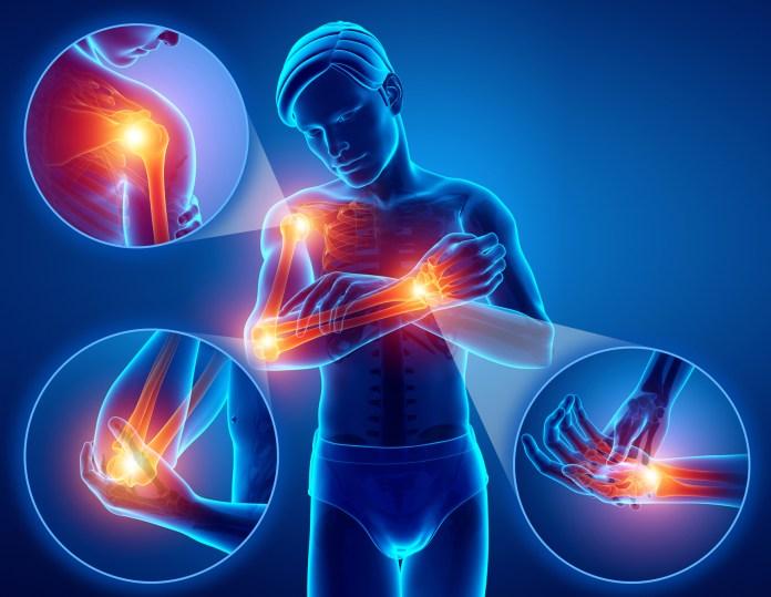 Top 10 étel ízületi fájdalom ellen