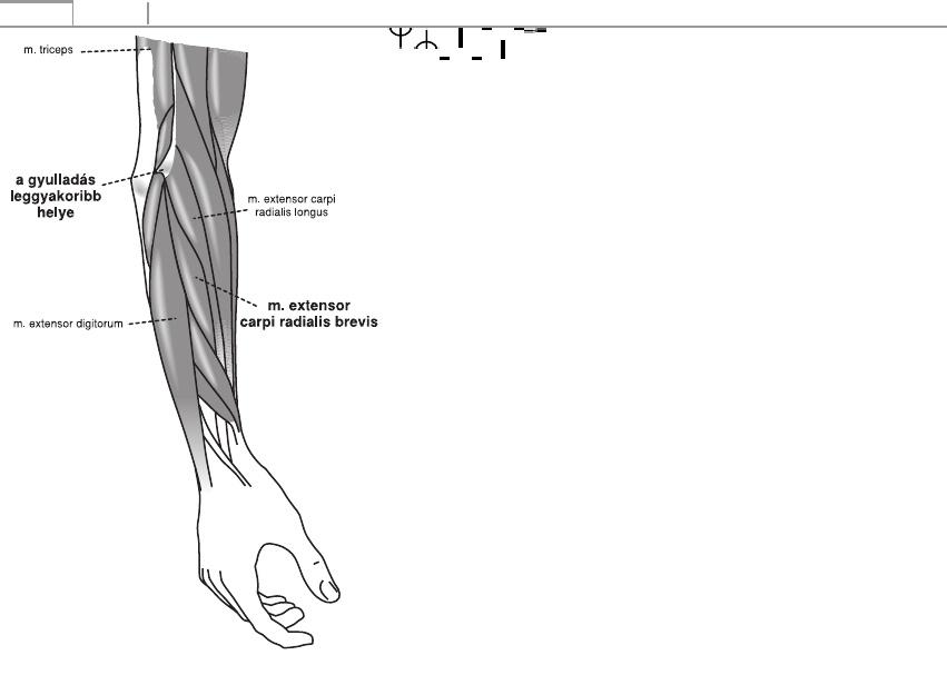 Dr. Seregi Antal | Ortopédia | Short radius - short ulna