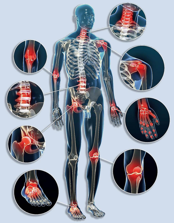 ízületi fájdalmak csontokkal, mit kell tenni