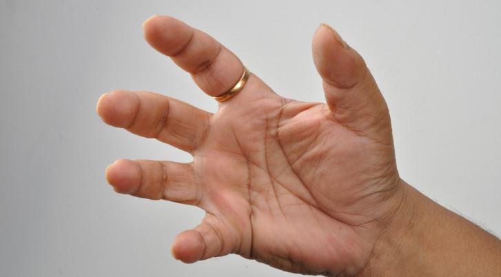 a kis ujj ízületének kezelése)