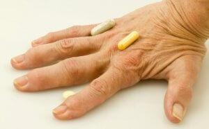 rheumatoid arthritis kézkezelésben a csuklóízület a sugár törése után fáj