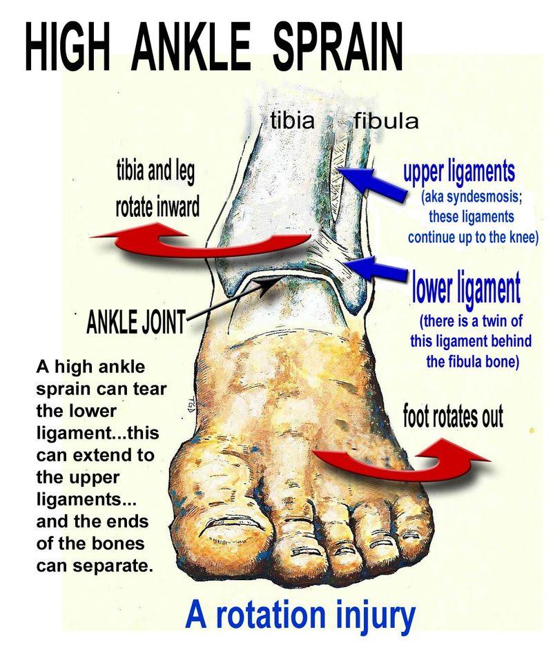 láb-sprain kezelés