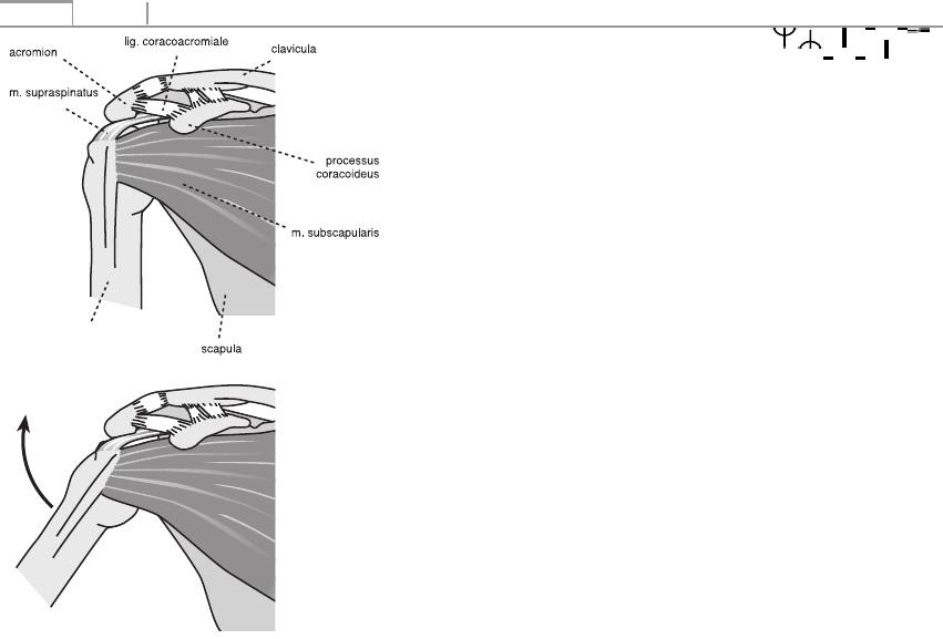 a 3. fokú kéz disztális interfalangeális ízületei artrózisa)