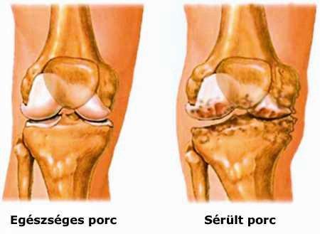 térd artritisz szindrómák miért fáj az ízületek nagyon