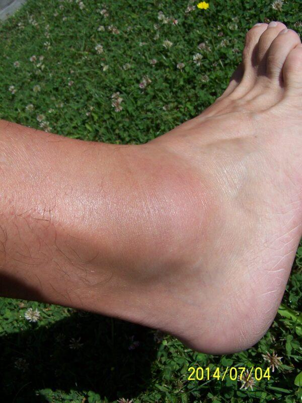 a láb ízületének duzzanata