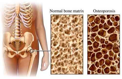 csontritkulásos ágyéki kezelési gyógyszerek