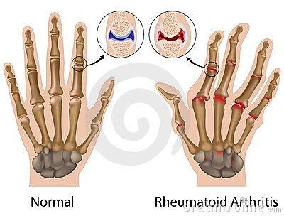 ízületi fájdalom a jobb kéz középső ujjában