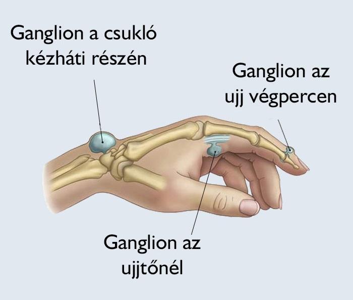 boka ciszta kezelés fájdalom tünetei