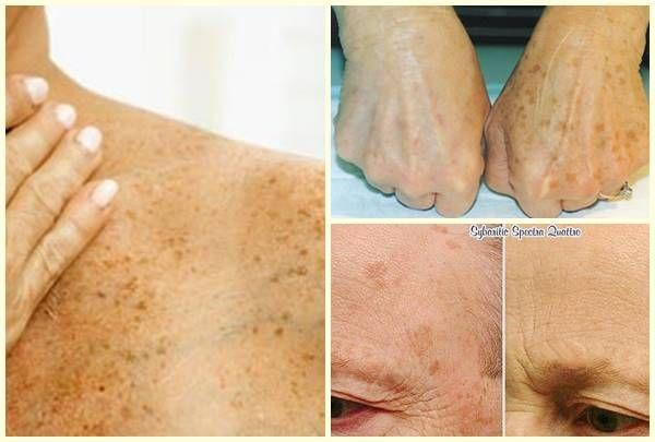 Medicus Valgus Pro Big Toe rögzítő (Valgus Pro) - vélemények