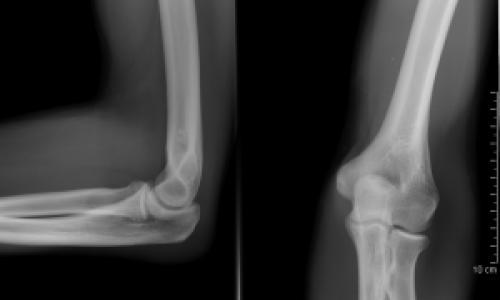 ketorol gél csontritkulás kezelésére ha fáj a lábízület