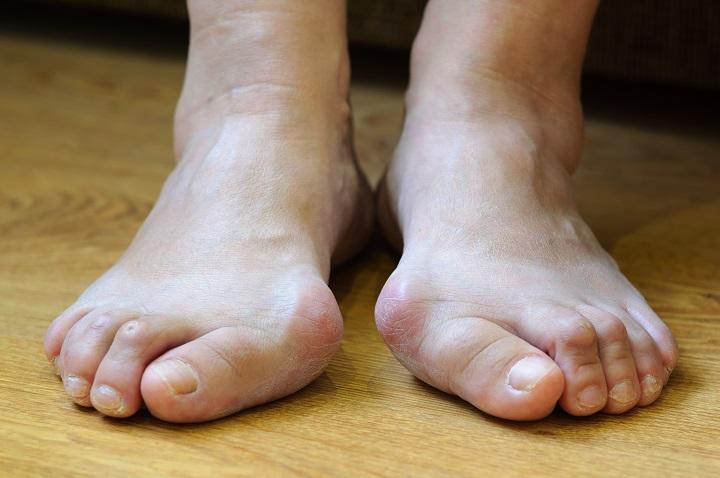 ízület a nagy lábujjon