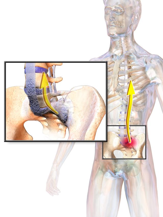 gerinc kóros ízületi betegsége könyök ízületi fájdalmak