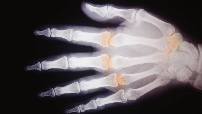 hogyan kezeljük az ízületek és a csontok fájdalmait
