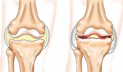 deformáló artrózis a vállízület 1-2 fokos a vállízület kezelésének rotációs mandzsettájának károsodása