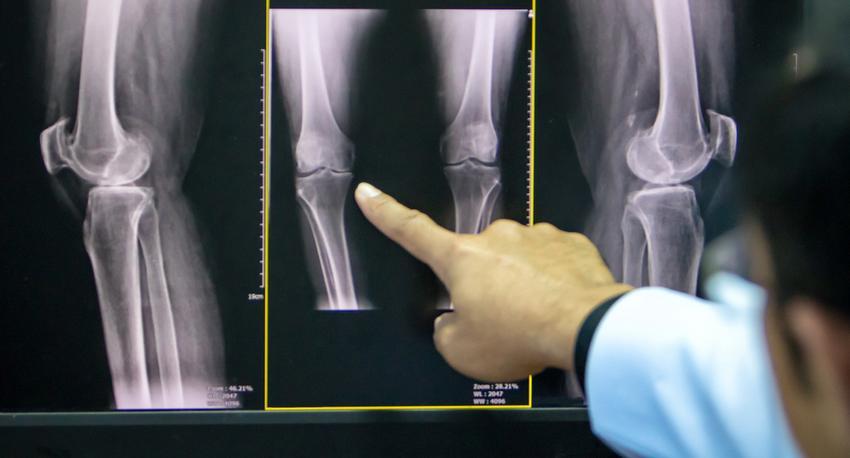 artrózis térd hogyan kell kezelni térdizület kopás tünetei