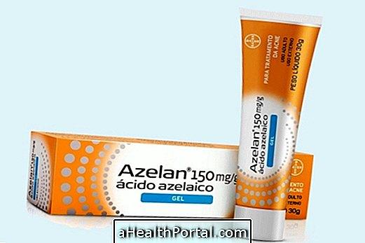 a kenőcs a rheumatoid arthritis kezelésére szolgál)