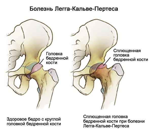 a vállízület kezdeti artrózisa