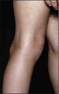 térdízületi ciszta kezelés)