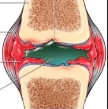 az ízület és a nagy lábujj artrózisa
