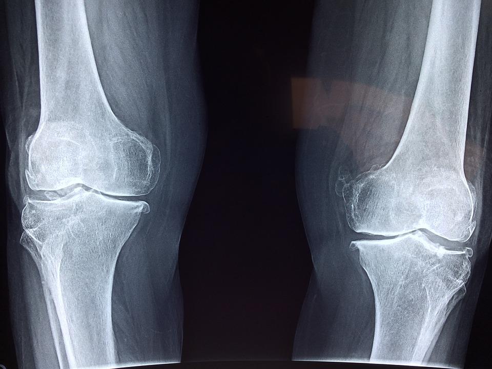 artrózis kezelés diagnosztizálása)