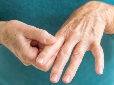 ujjak rheumatoid arthritis, mint kezelni