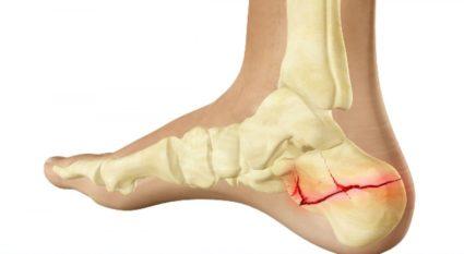 poszttraumatikus bokaízület artrózisa 1 fokos kezelés)