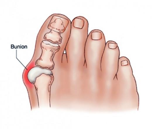 ízületi gyulladás és ízületi gyulladás a lábujjak kezelésében angioprotektorok gyógyszerei az osteochondrosishoz