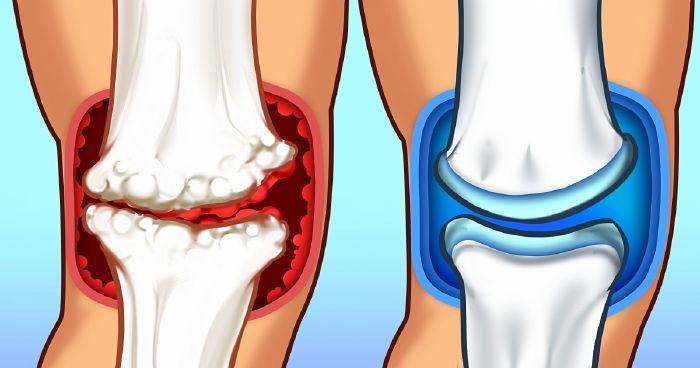enyhítse az ízületi fájdalmakat otthon