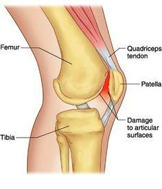 térdízület folt artrosis)