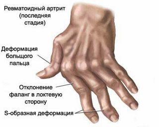 duzzanó fájdalom az ujjak ízületeiben)