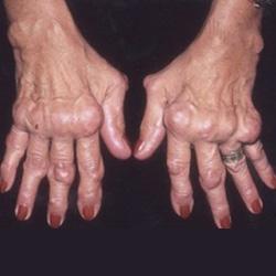 deformáló artritisz a kezek kezelésében