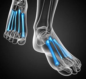 a vállízület romboló artrózisa ízületi fájdalomkezelés homeopátiában