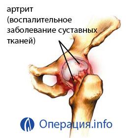 a bal térdízület deformáló artrózisa 3 fok