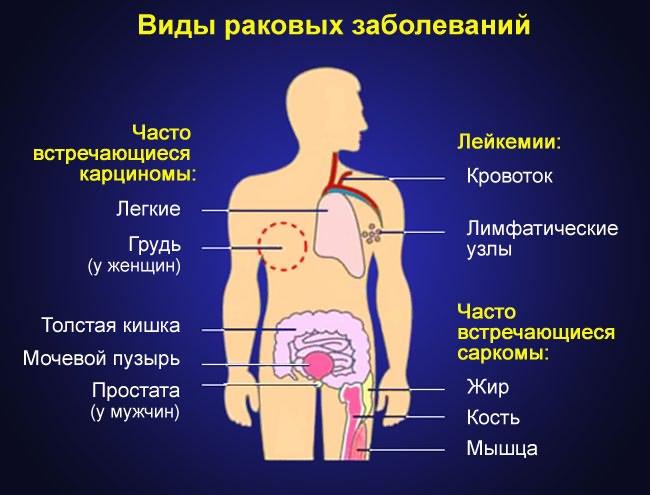 astra ízületi kezelés a térdízület kereszteződése