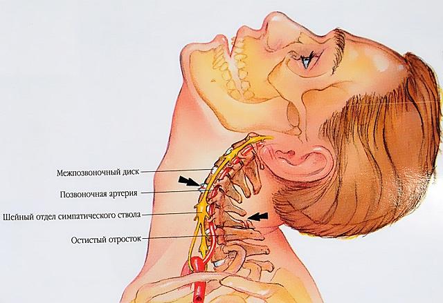 Milyen kenőcsök és gélek a nyaki osteochondrosishoz, A nyak és a torok csontritkulása