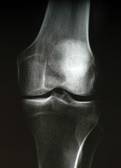 Kamaszkori térdfájdalom - Megelőzhető? - Mi lehet a megoldás?