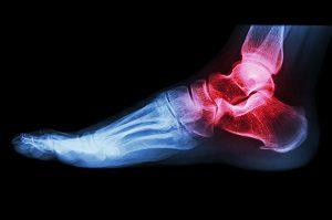 a bokaízület tüneteinek artrózisa kezelést okoz