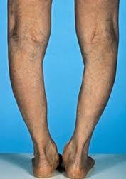 az alsó lábszár, a bokaízület és a láb károsodása