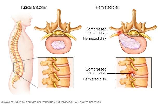 lumbosacral fájdalom a csípőízületekben)