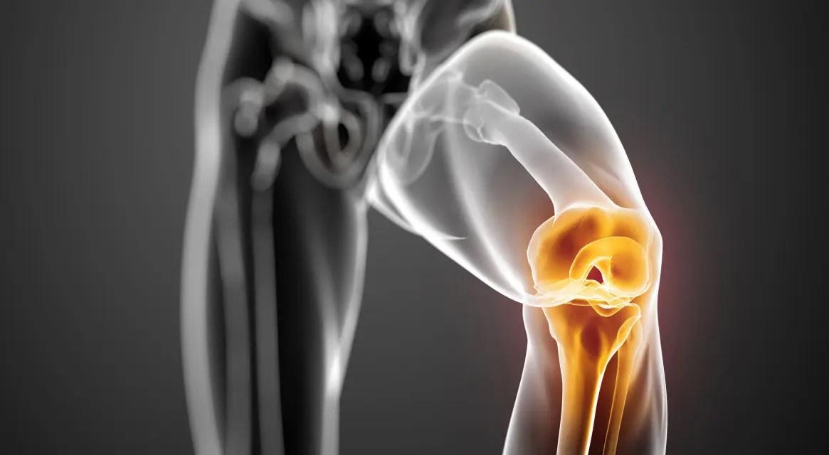 kenőcsök artrózis és ízületi gyulladás kezelésére gyógyszerekkel lycopid ízületi fájdalmak esetén