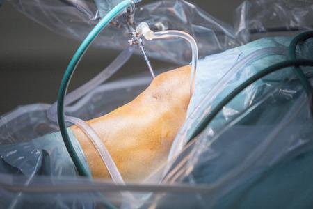 fájdalom térd műtét után)