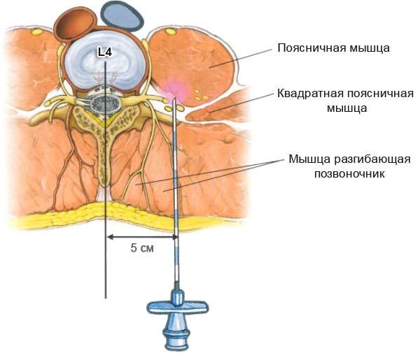 Mi fáj az ágyéki régióban? A betegség tünetei - fájdalom az ágyéki gerincen