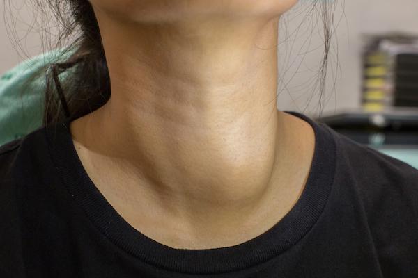 fájdalmat okozhatnak az ízületek a pajzsmirigy miatt