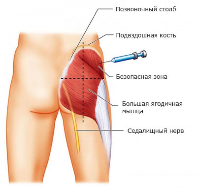 XEOMIN 50 egység por oldatos injekcióhoz - Gyógyszerkereső - Hászeplaklovasudvar.hu