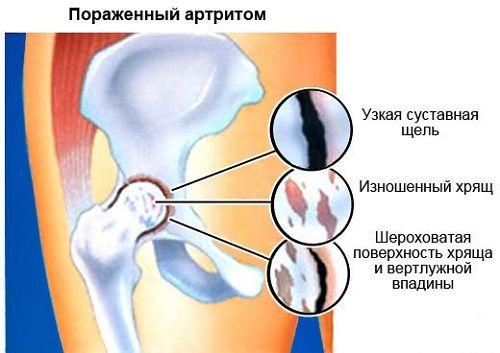 éles fájdalom van a csípőízületben fájdalmat okoz a medence ízületeiben