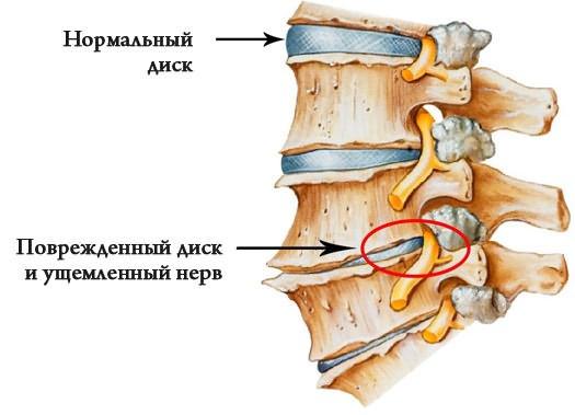 a csípőízület deformáló artrózisa. kezelés)