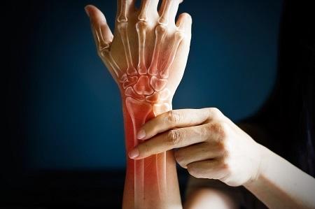 készítmények ízületi gyulladáshoz és csontritkuláshoz