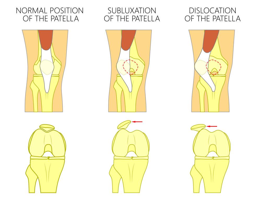 kenőcs a comb ízületeinek fájdalmára fájdalom a térdben és az alsó lábban