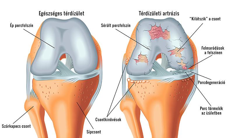térdízületi tünetek és kezelési hatások)